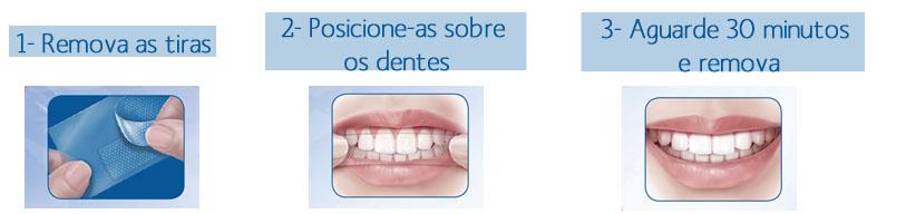 Tag Como Clarear Os Dentes Com Aparelho