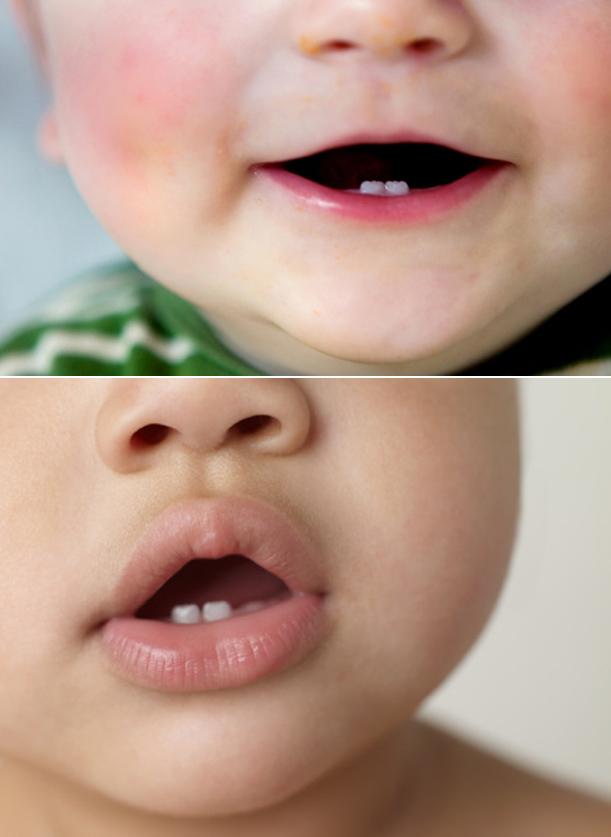Primeira dentição imagem 1